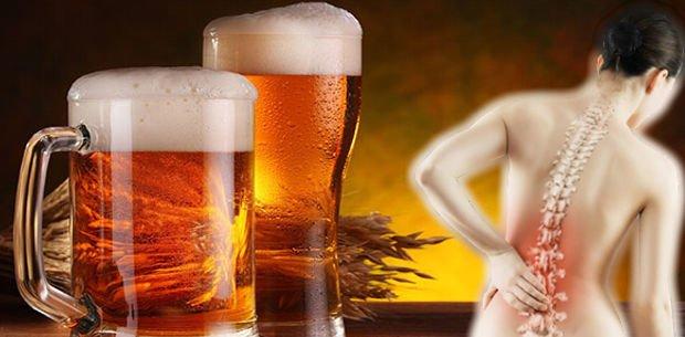 cerveza contra la osteoporosis