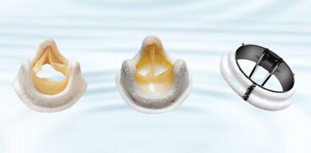 cómo son las prótesis valvulares