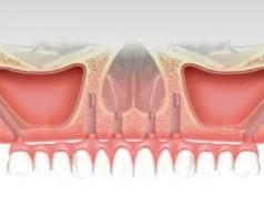novedades sobre implantes