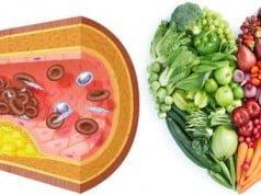 consejos para prevenir el colesterol malo