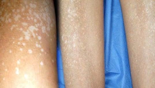 manchas blancas en las piernas