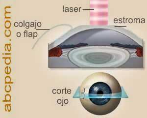 esquema del funcionamiento del laser ocular