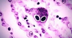 cmv citomegalovirus neumocitos
