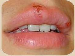 herpes virus labios mujer