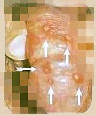 herpes genital miembro