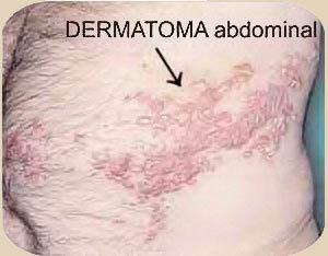 foto herpes de la piel